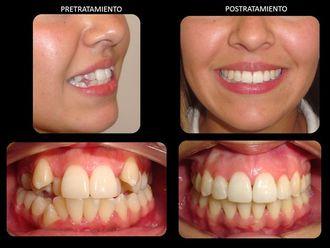 Ortodoncia-577797