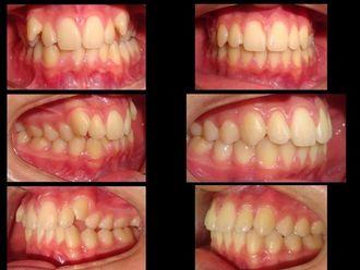 Ortodoncia-618028