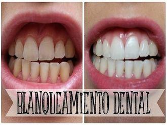 Blanqueamiento dental-618029