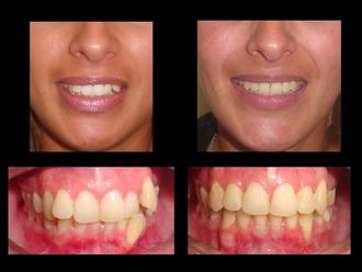 Ortodoncia-618031