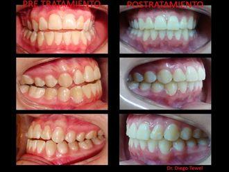 Blanqueamiento dental-618032