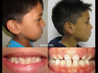Ortodoncia-626288