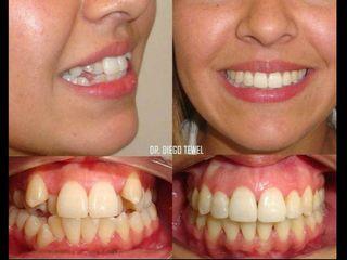 pre y post tratamiento de ortodoncia