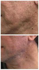 Tratamiento Acne con Laser CO2  - Dra. Teresita Cravino
