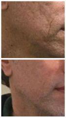 Tratamiento acné - Dra. Teresita Cravino