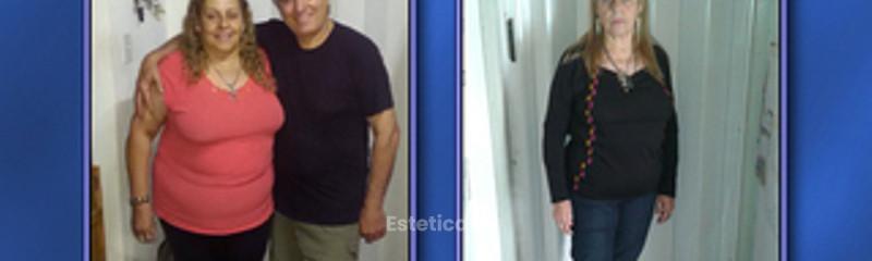 Antes y después - descenso de peso