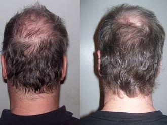 Implante capilar-629346