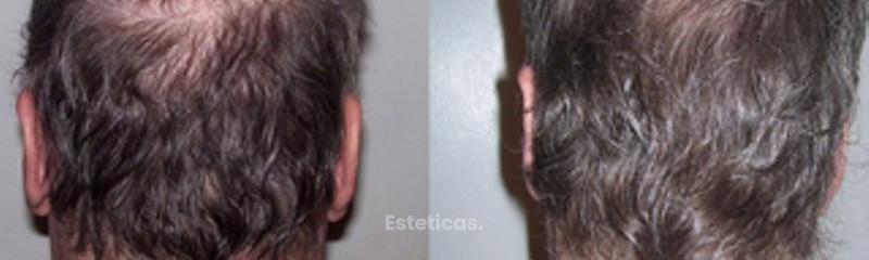 Implante capilar sin cicatriz