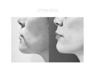 Lifting-794787