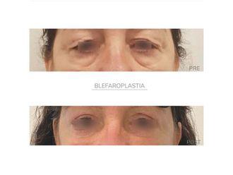 Blefaroplastia - 795151
