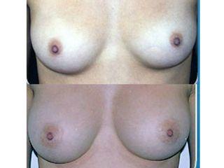 Implantes mamarios