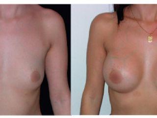 Antes y despues de implantes mamarios