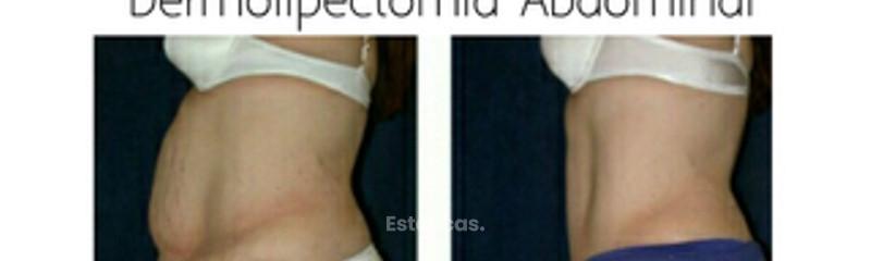 Abdominoplastia Dermolipectomía Dr. Matías Bertera