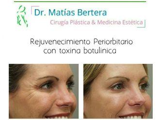 Botox-598475