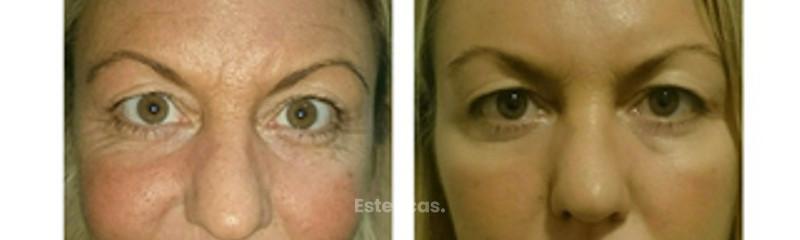 Rejuvenecimiento Facial Rellenos Faciales Botox Ácido Hialurónico Dr. Matías Bertera