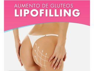 Lipofilling