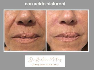 Ácido hialurónico-650832