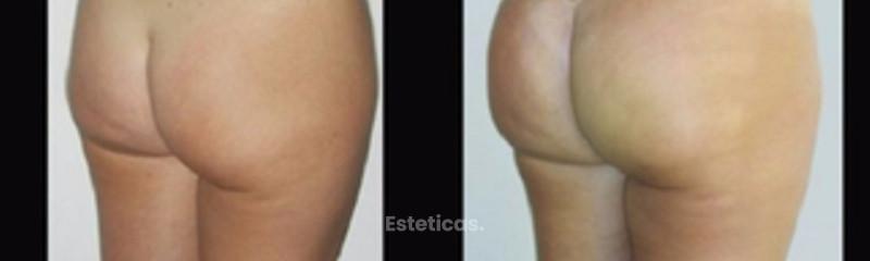 Antes y despues de Aumento gluteo con lipotransferencia