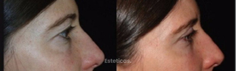 Antes y despues de blefaroplastia