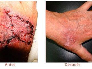 Antes y despues de tratamiento de cicatrices
