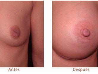 Antes y despues de reconstruccion mamaria