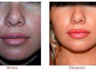 Antes y despues de aumento de labios