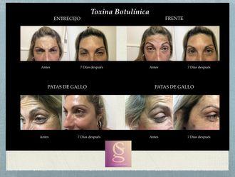 Botox - 632132