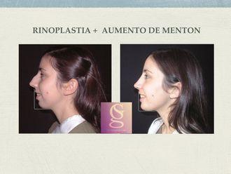 Rinoplastia - 634612