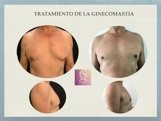 Ginecomastia - 636632