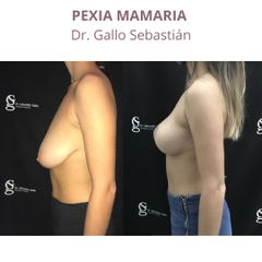 Mastopexia - Dr. Sebastián Gallo