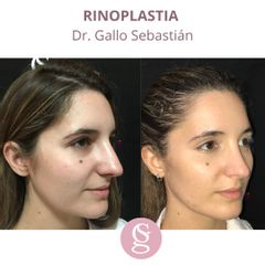 Rinoplastia - Dr. Sebastián Gallo