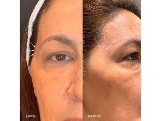 Rejuvenecimiento facial-647646