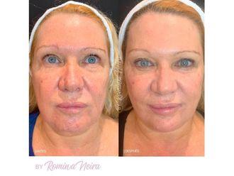 Rejuvenecimiento facial-647918