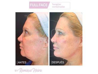 Rejuvenecimiento facial-648094