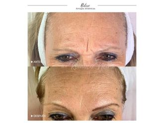 Botox-648652