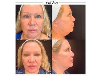 Rejuvenecimiento facial-648668