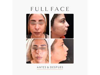 Rejuvenecimiento facial-663105