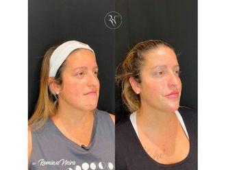 Botox-794431