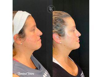 Botox-794432