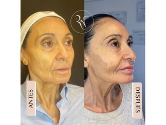 Rellenos faciales-794437