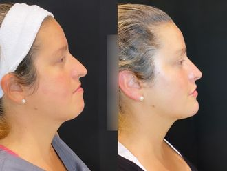 Rellenos faciales-795155