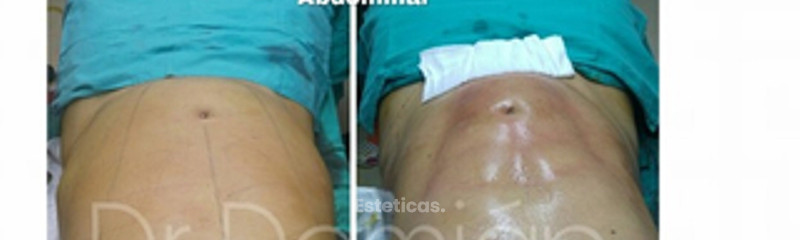 marcacion abdomial