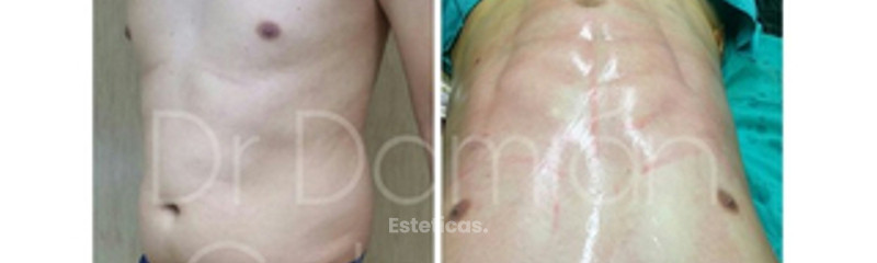 Liposuccion con marcacion abdominal