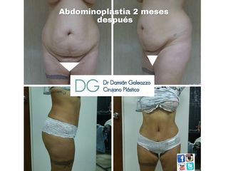 Dermolipectomia