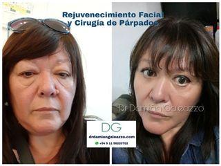 Blefaroplastia y rejuvenecimiento facial