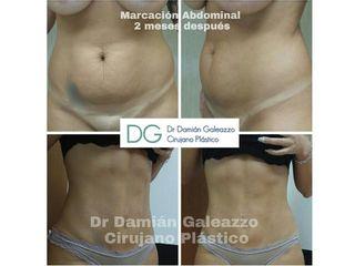 liposuccion con marcacion abdominal Dr Galeazzo