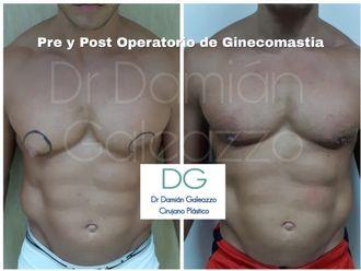 Ginecomastia-623510