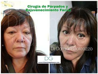 Rejuvenecimiento facial-623511