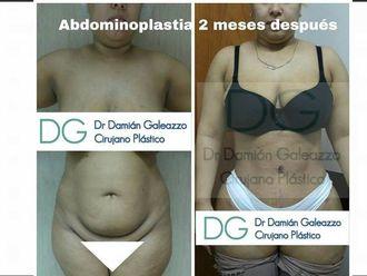 Abdominoplastía - 626125