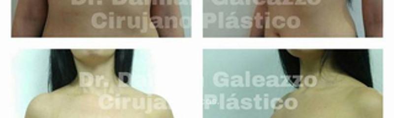 Aumento mamario Dr Galeazzo